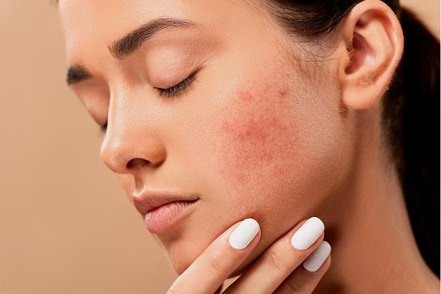 cilt alerjisi